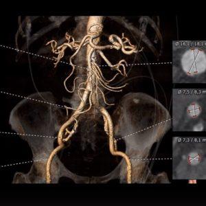 Jornada Internacional de Imágenes Cardiovasculares