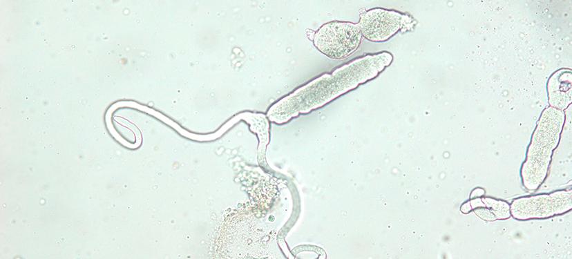 Larval stages of Prosorhynchoides carvajali from mussel hosts Perumytilus purpuratus